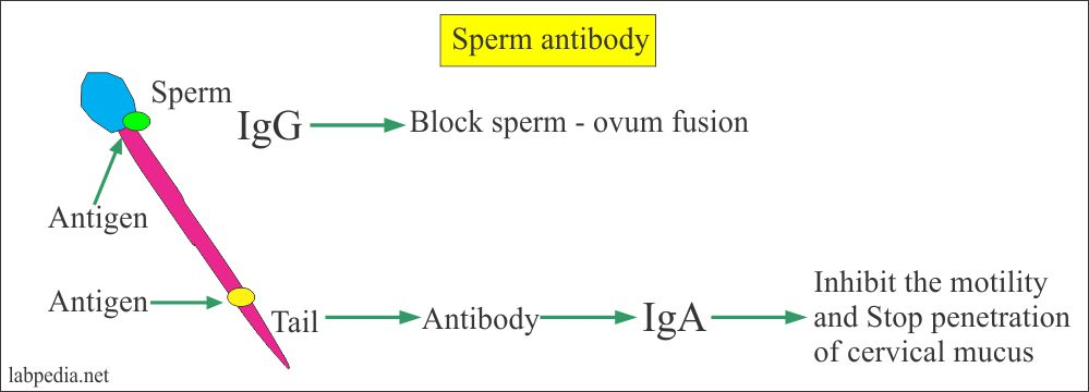 Semen – part 3 – Sperm Antibody (Anti Sperm-antibody, Anti Spermatozoal antibody), Infertility Screening