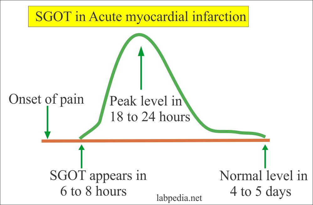 SGOT in the Acute Myocardial Infarction