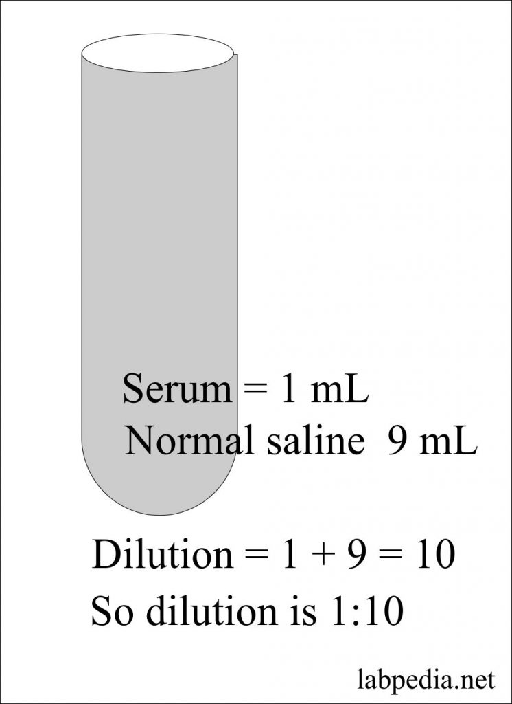 Solution preparation of 1:10 dilution formation