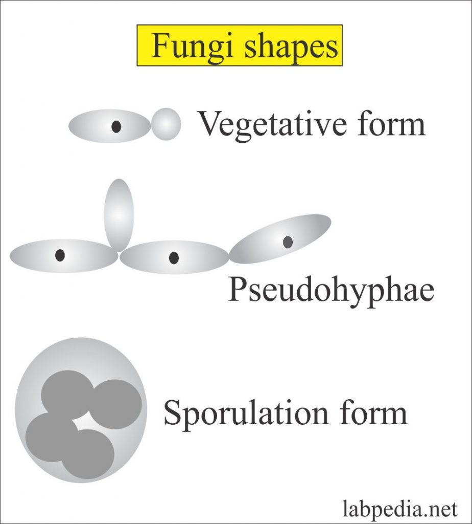 Sputum for fungi (Fungus, Yeast and Molds)