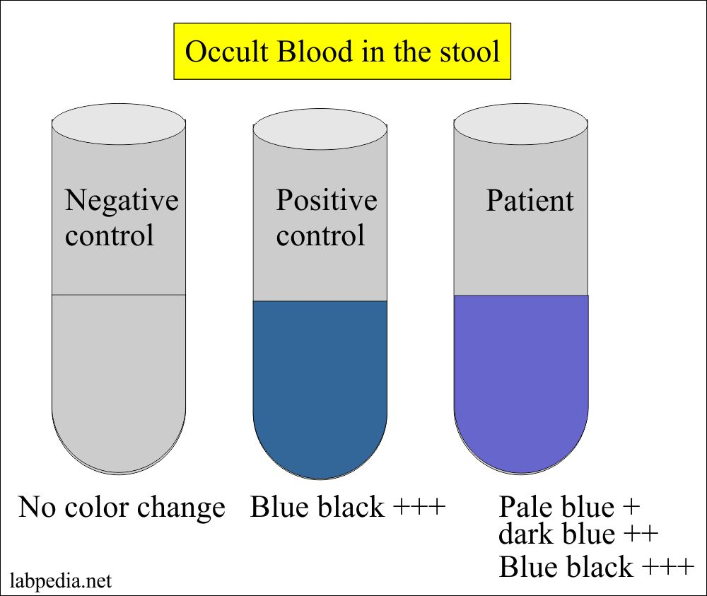 Occult blood reporting