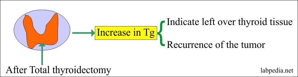 Tumor Marker – Part 10 – Thyroglobulin (Tg) as Tumor marker