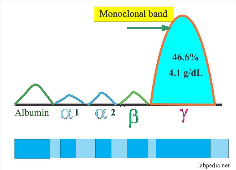 Tumor Marker – Part 5 – M-band, NMP 22, BTA, Oncogenes