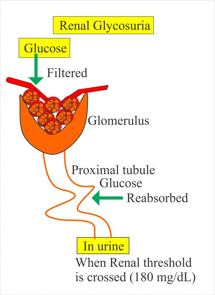 Presence of Glucose in the Urine