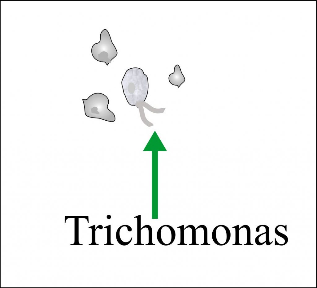 Urine Trichomonas