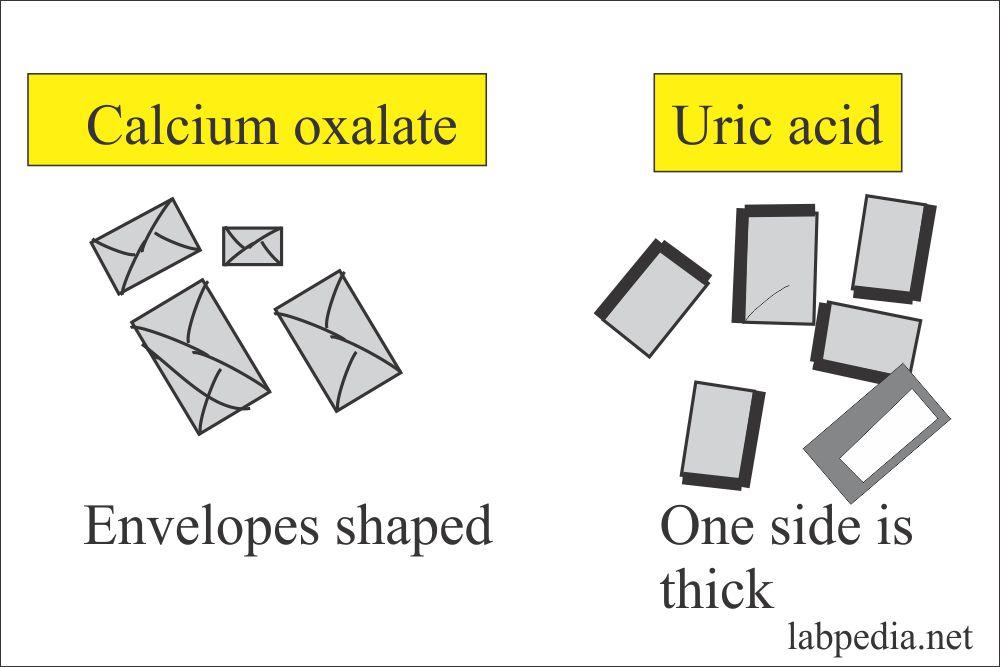 Crystals in acidic Urine