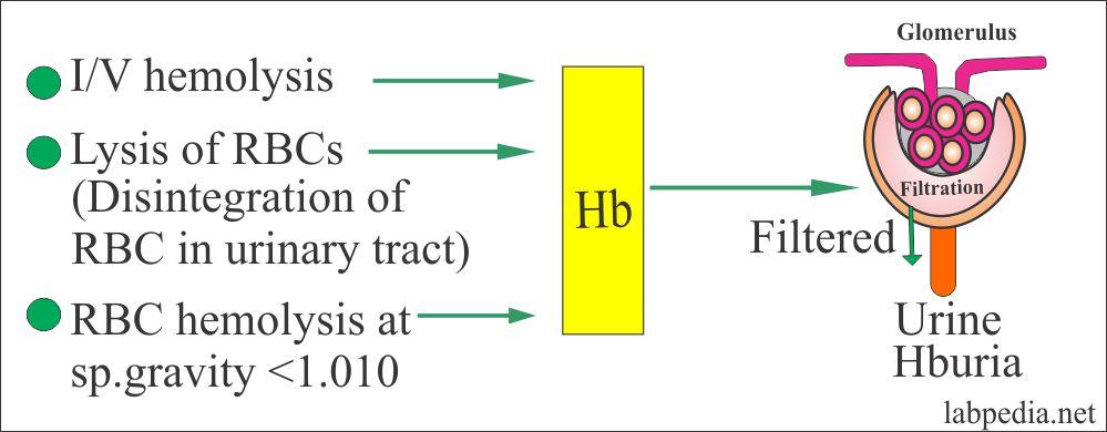 Urine – Hemoglobin in the Urine, Hemoglobinuria