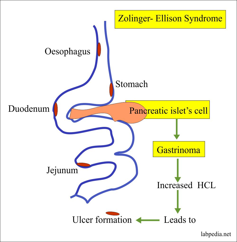 Zollinger-Ellison syndrome