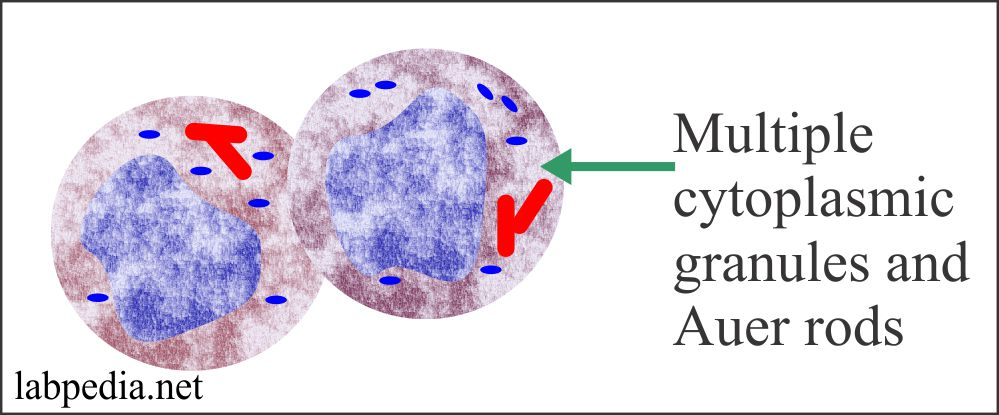 Acute myelocytic leukemia M2