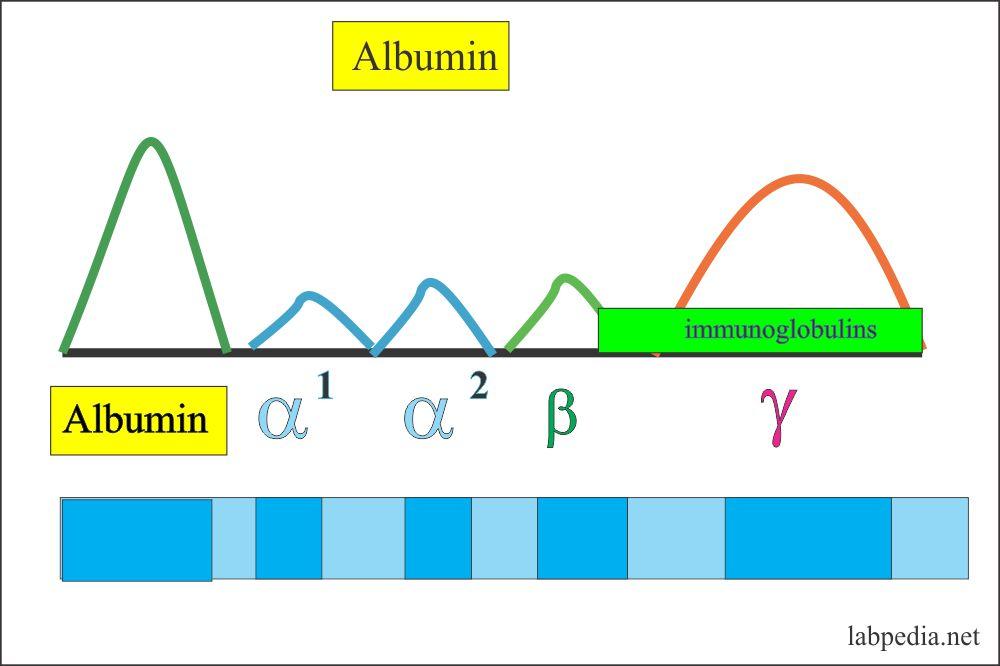 Albumin band on Electrophoresis