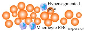 Anemia macrocytic megaloblastic
