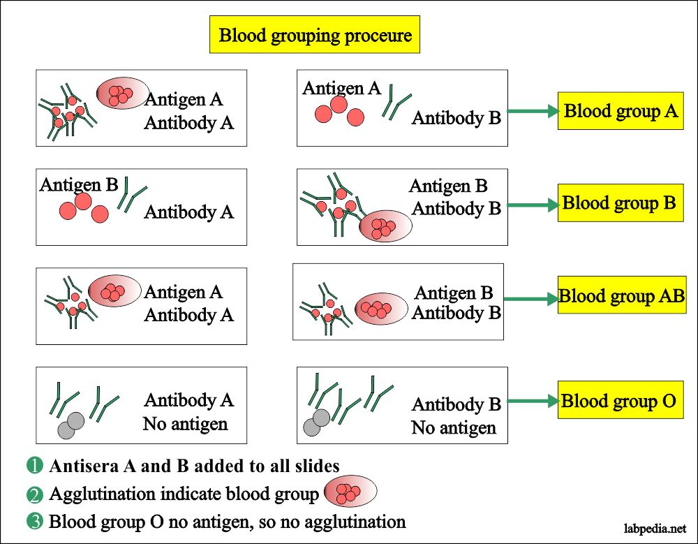 Blood banking – part 1- Blood Grouping (Blood Group ABO and Rh Typing) –  Labpedia.net