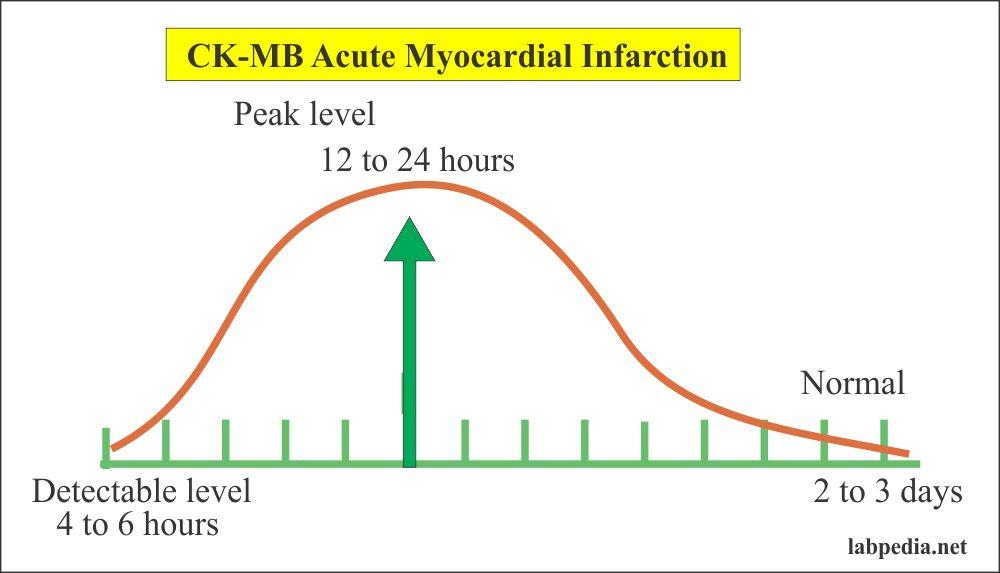 CK- MB profile in acute myocardial infarction