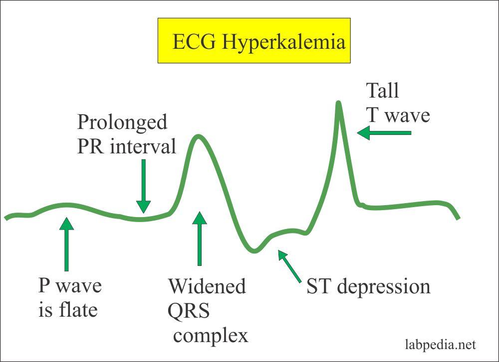 ECG changes in hyperkalemia