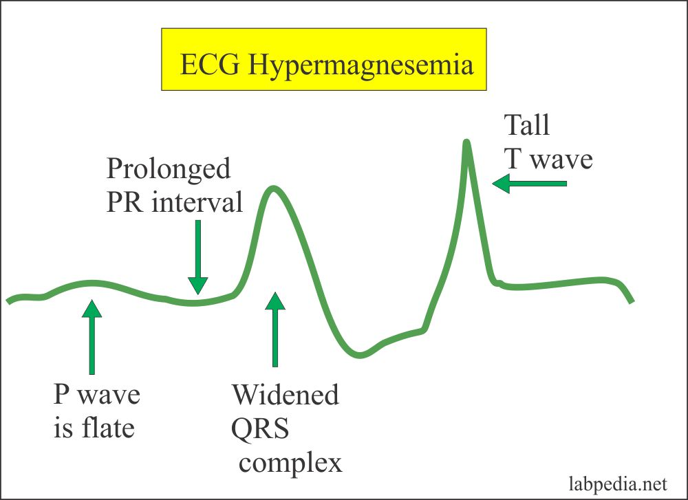 ECG changes in the  Hypermagnesemia
