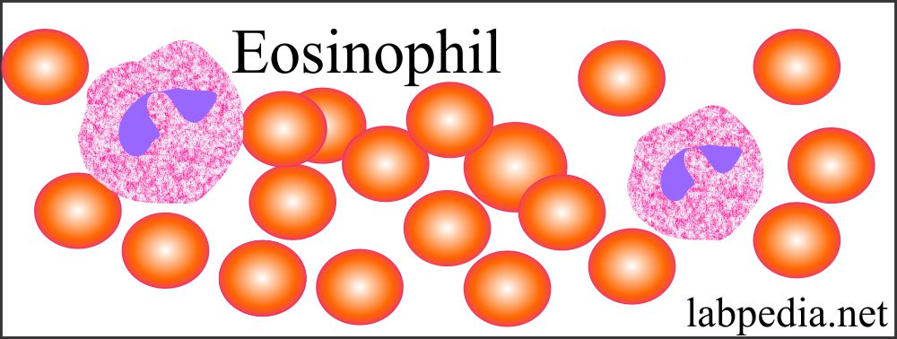 Eosinophil with prominent granules