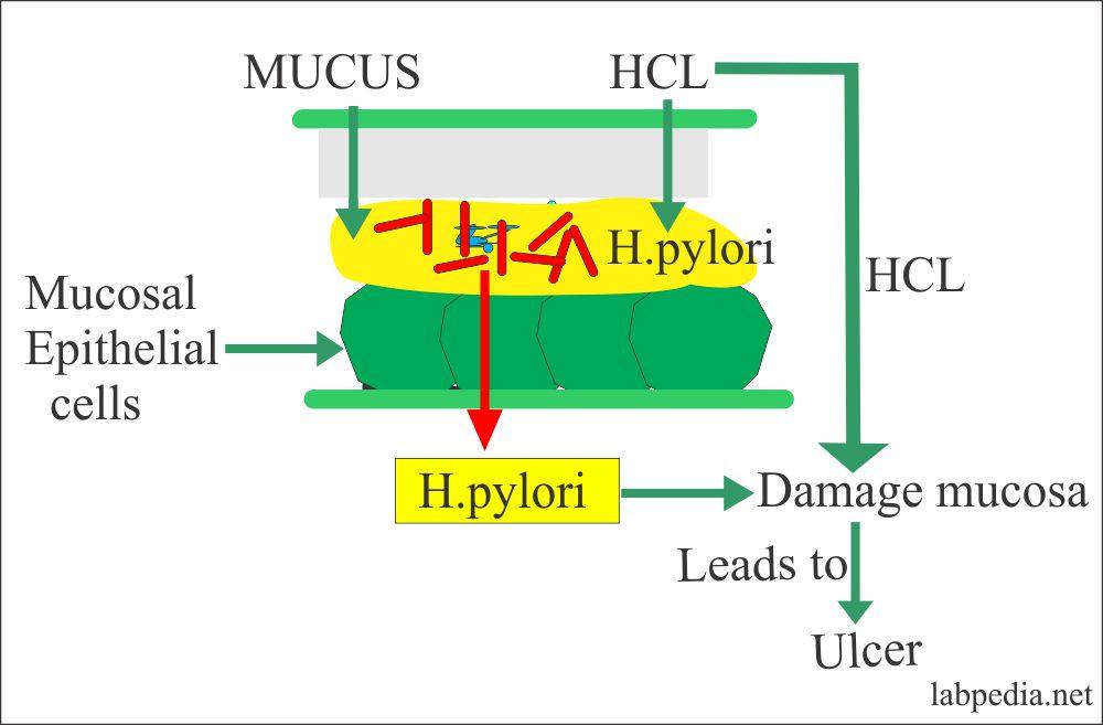 H.Pylori leading to damage to the mucosa