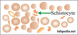 RBC Schistocyte cell