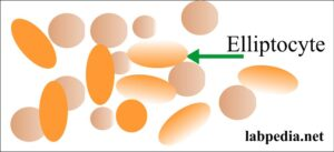 RBC elliptocyte