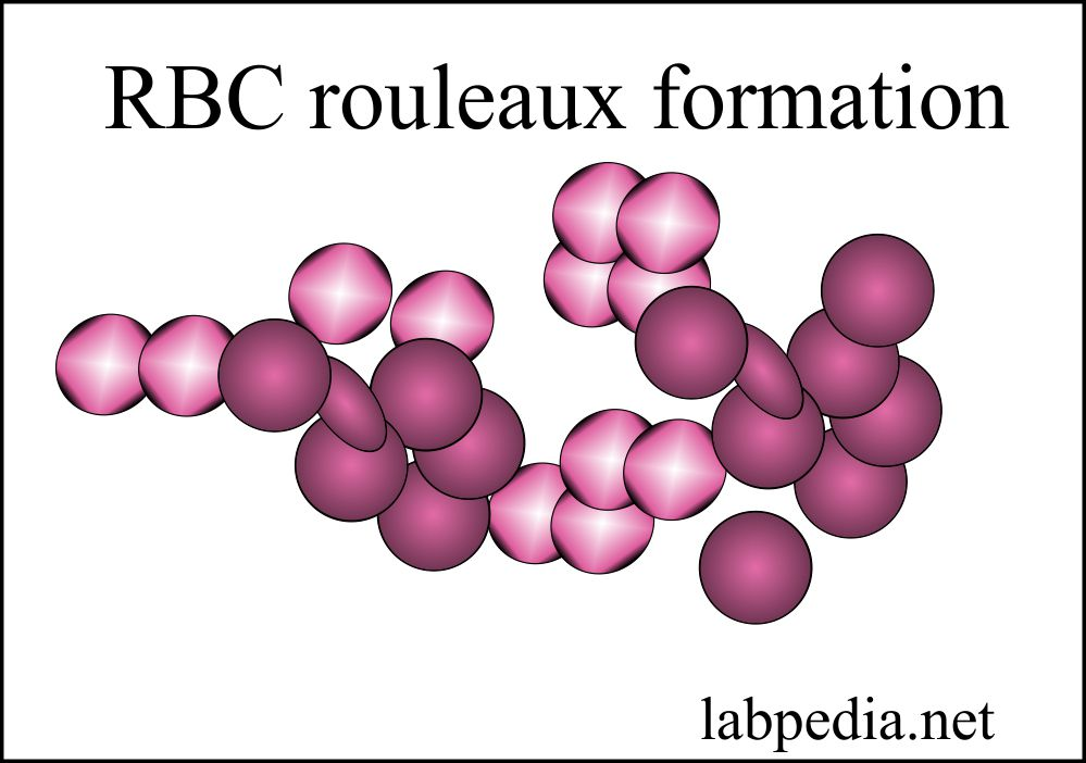 Red Blood cell rouleaux