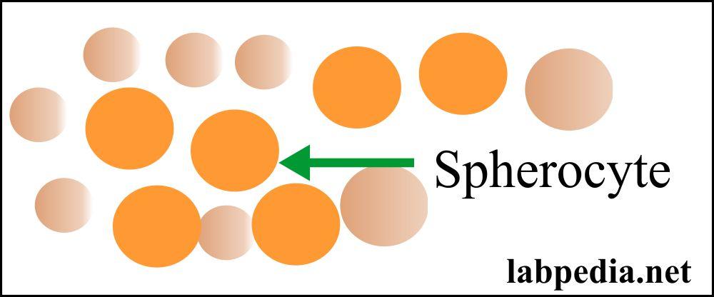 RBC spherocyte