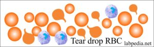 RBC tear drop poikilocyte