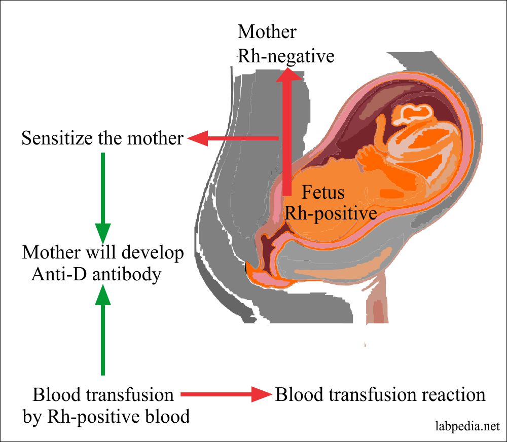Rh transfusion reaction in mother