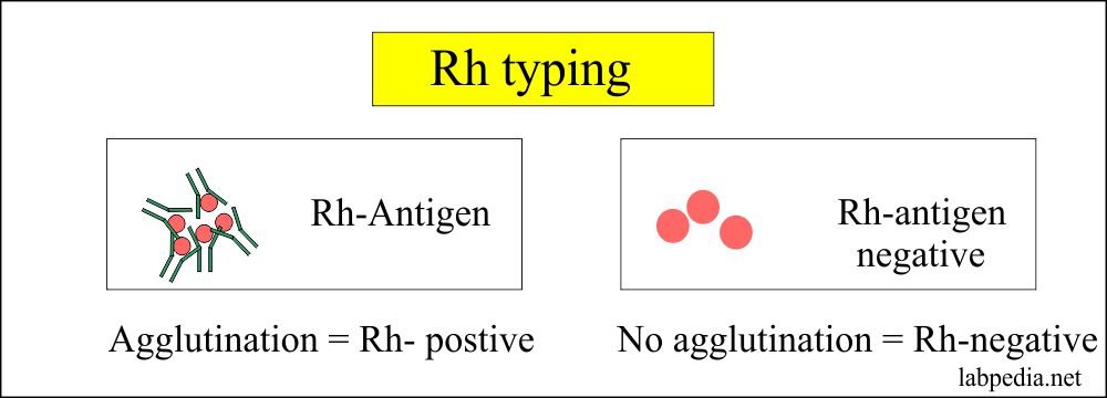 Rh- typing reading the result