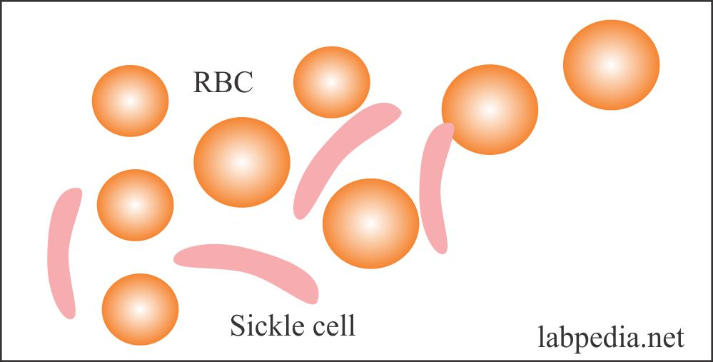 Sickle cell RBCs