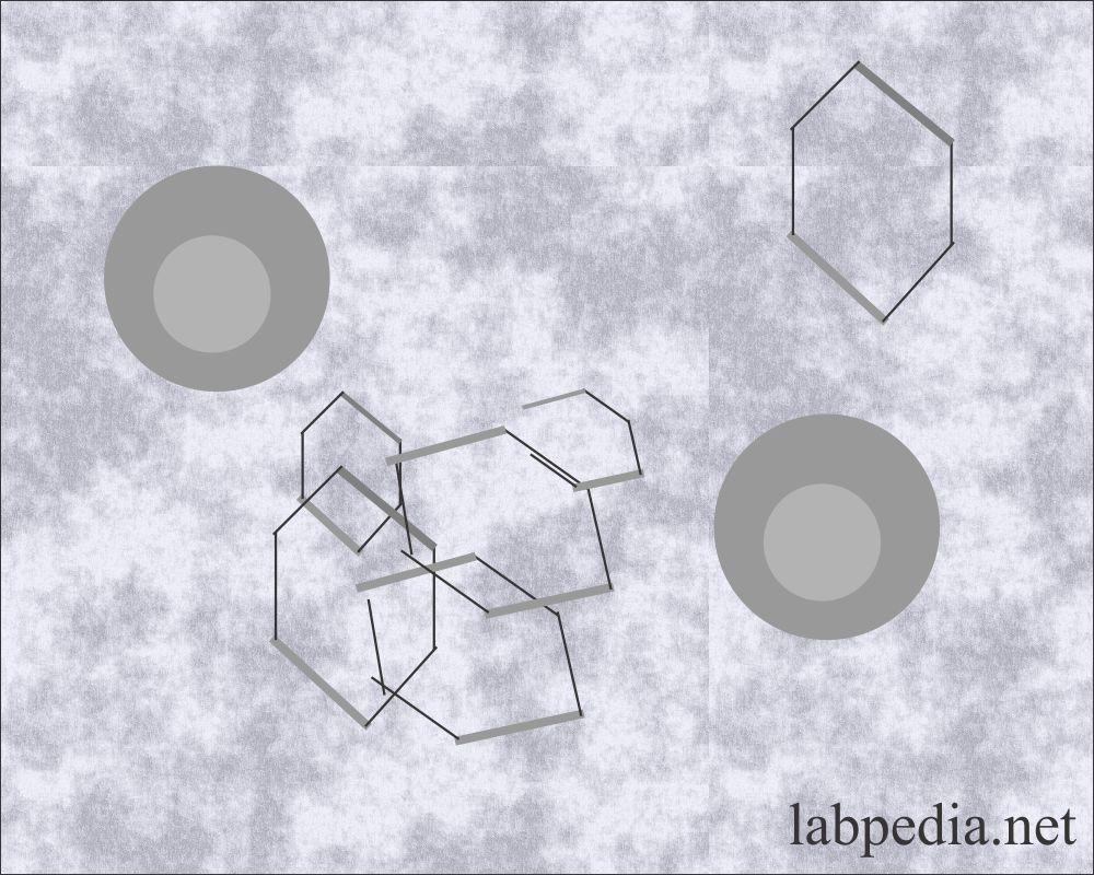 Urine Cystine crystals