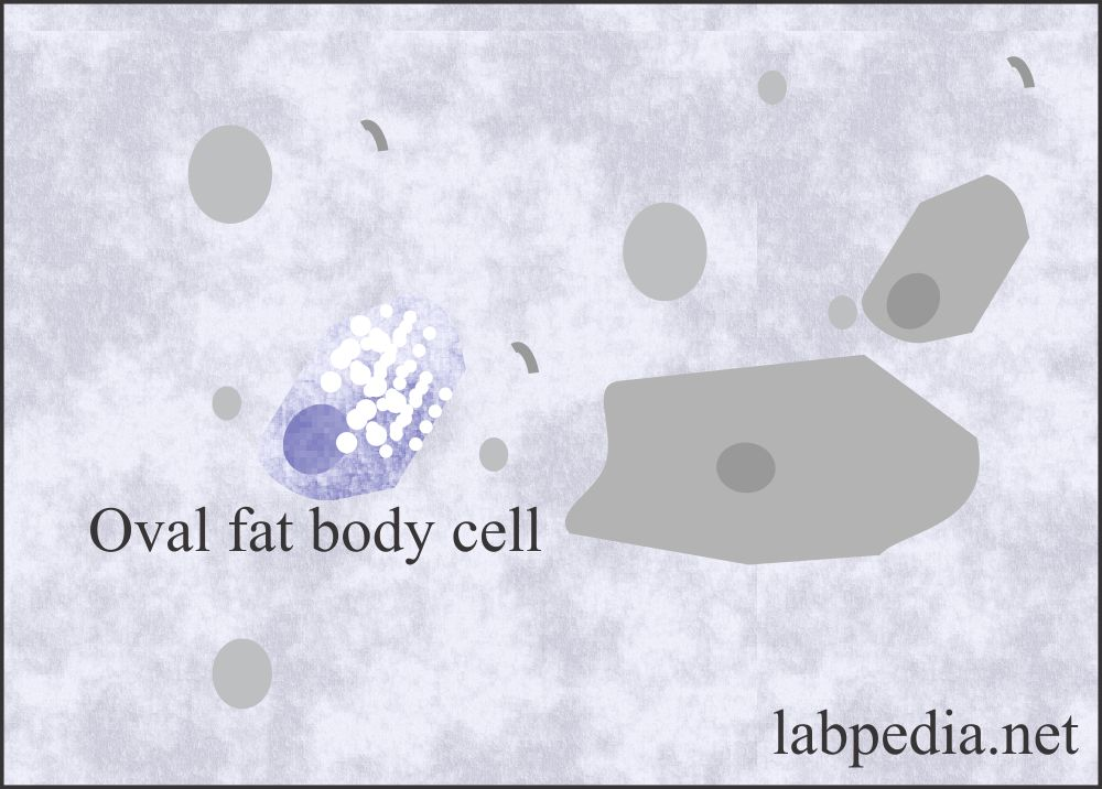 Urine Oval fat bodies cell