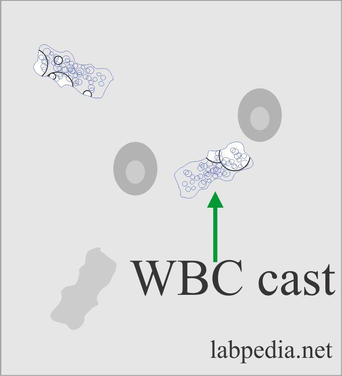 Urine WBC casts