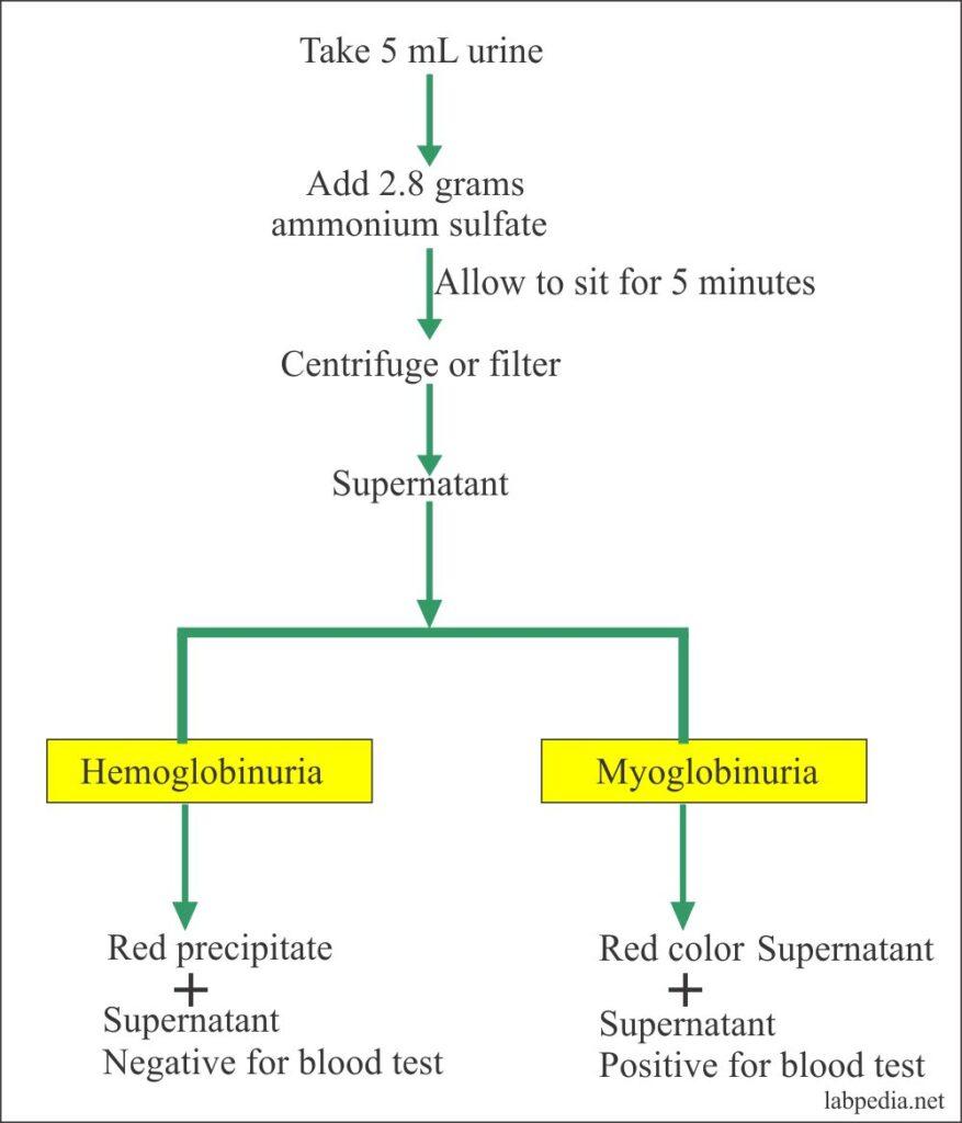 Urine ammonium sulfate test