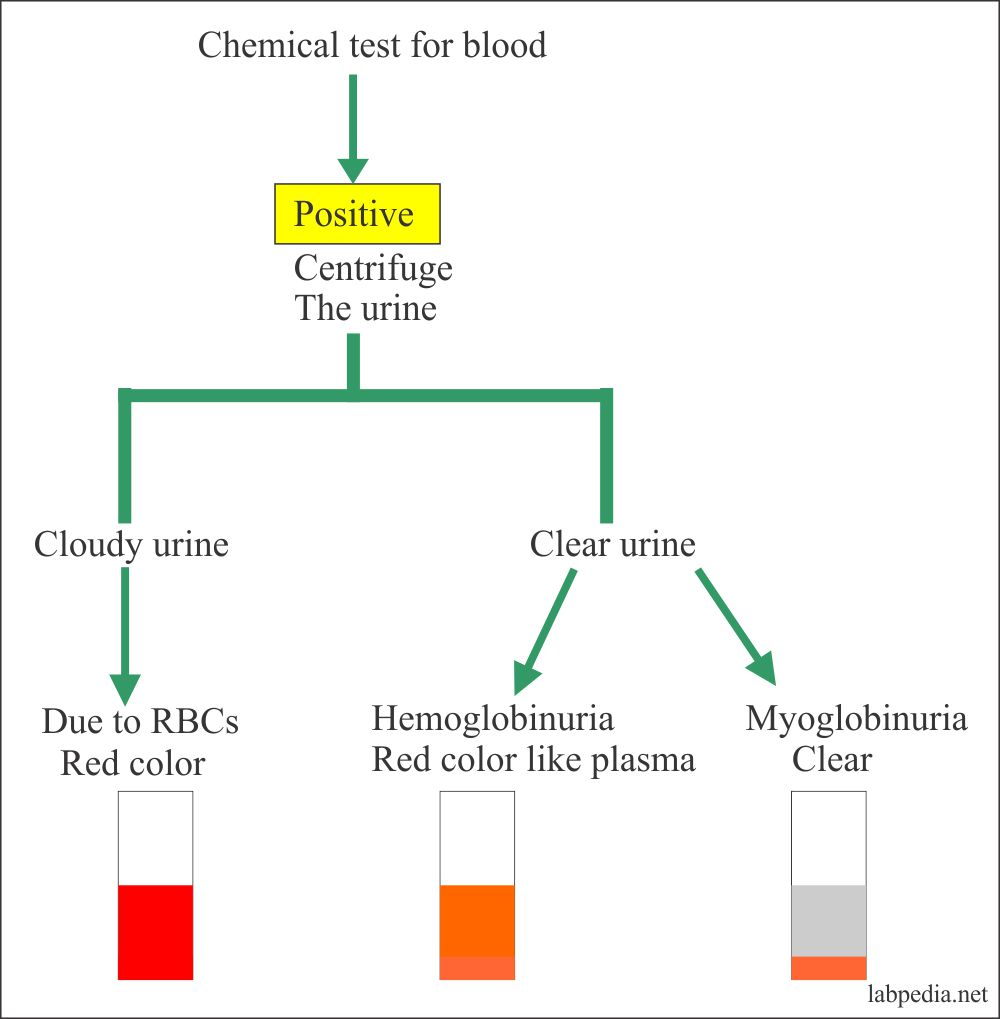 Urine blood chemical test positive