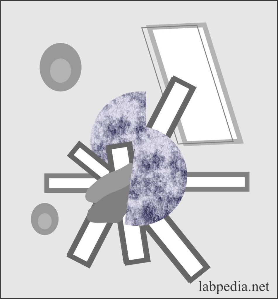 Urine sulfa drug crystals