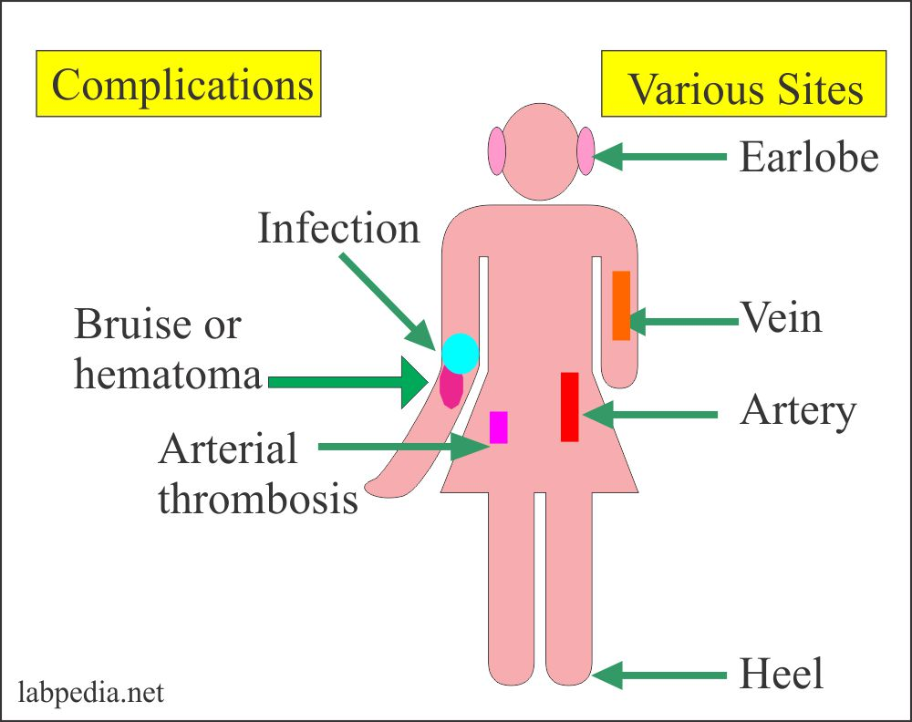 Blood sample site and complications