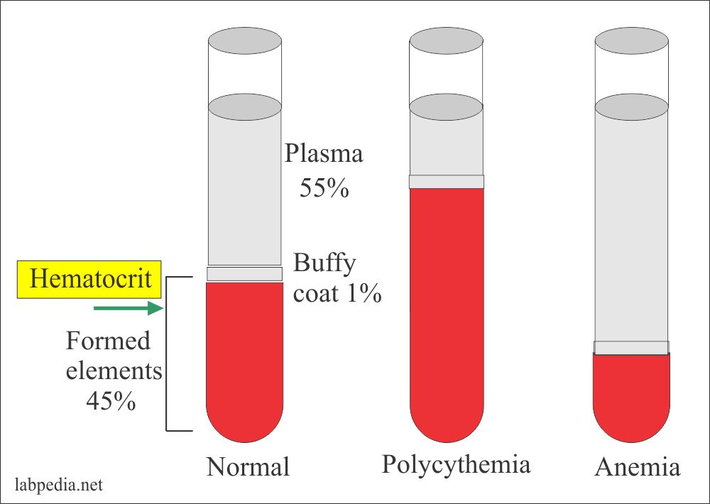 Hct values in anemia and polycythemia