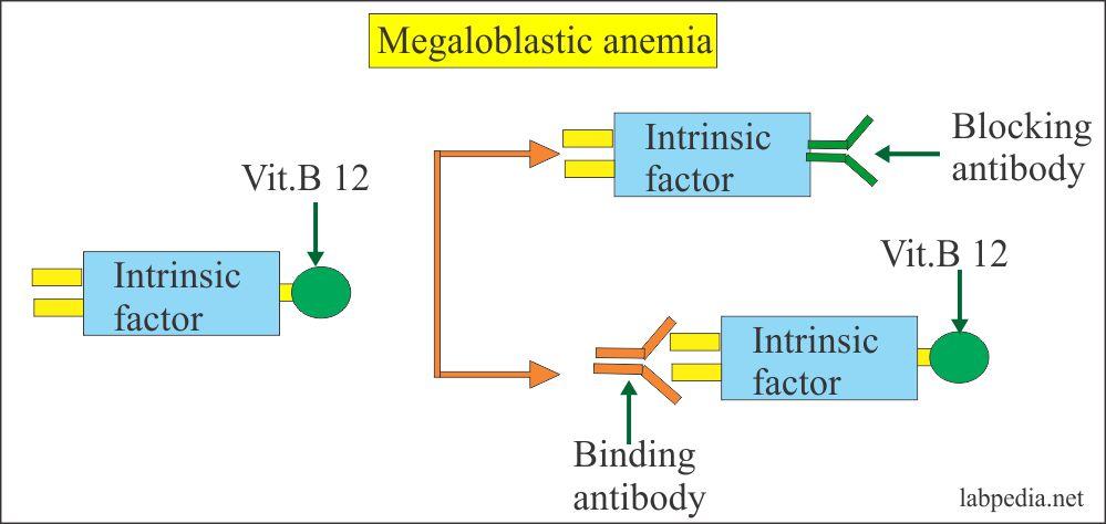 Mechanism of Pernicious Anemia