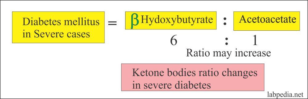 Ketone Bodies Ratio and relation to Diabetes Mellitus