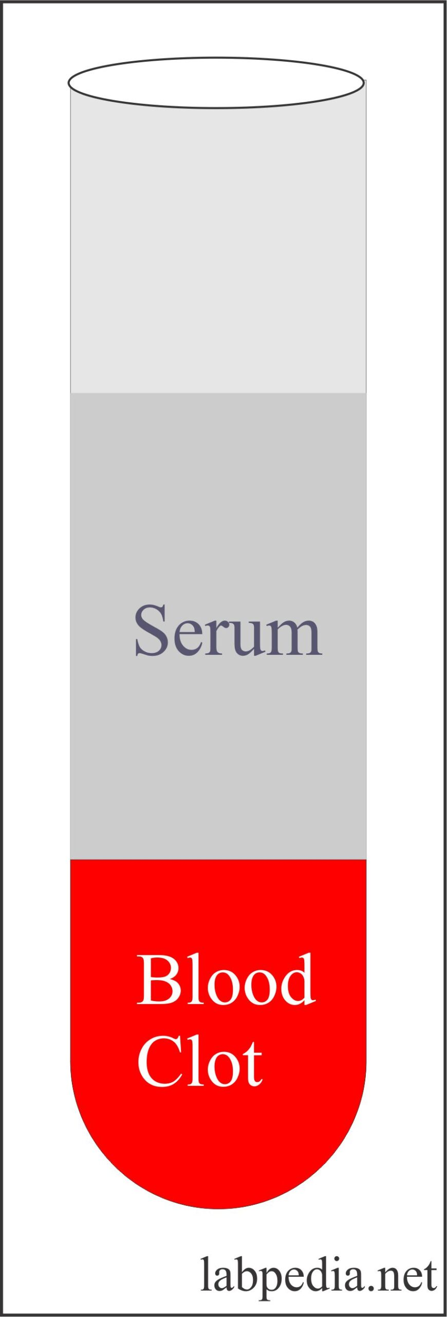 Serum test tube