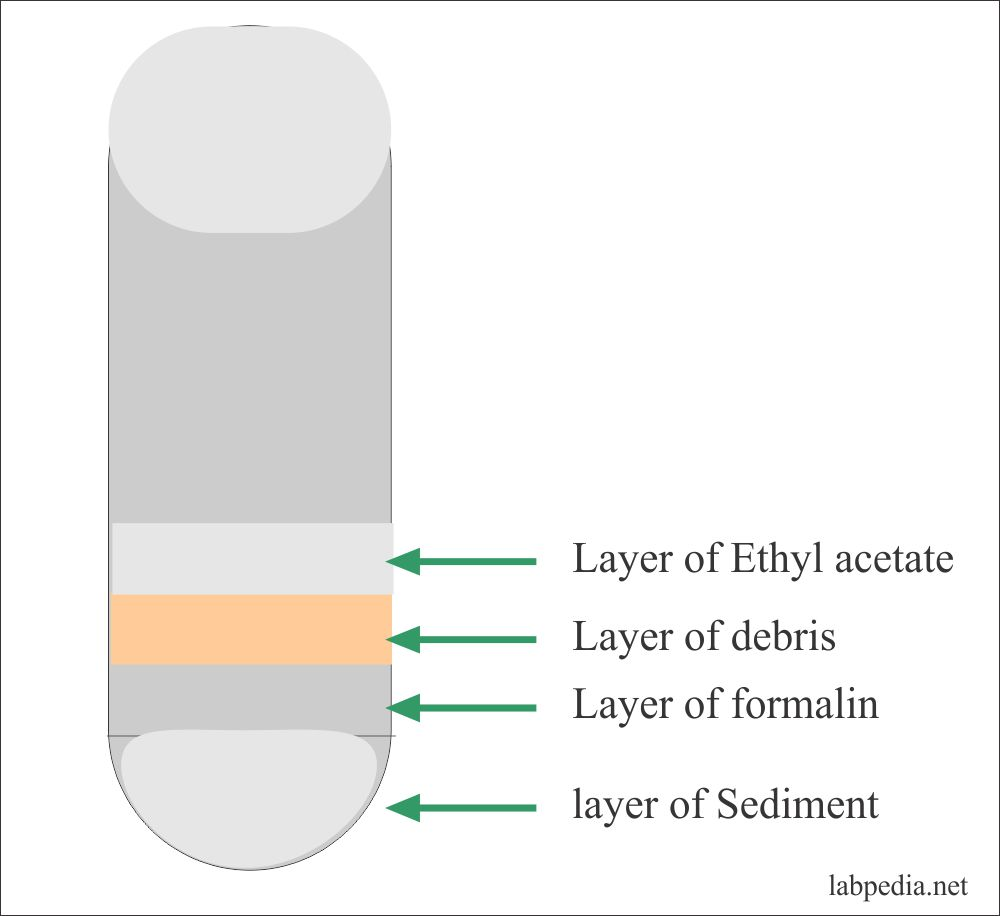 stool formalin-ethyl acetate