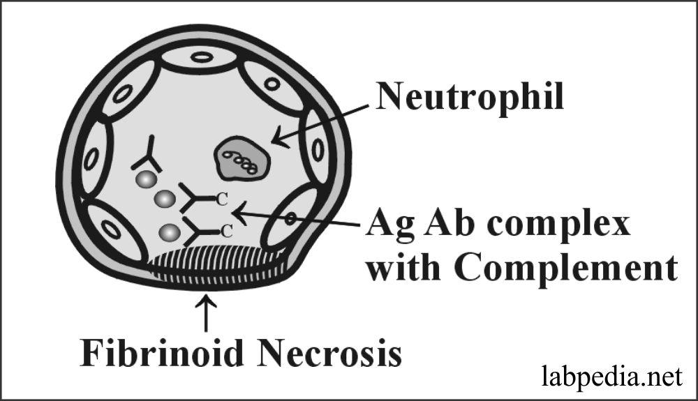 Chapter 13:- Hypersensitivity Reaction Type III, Immune Complex Disease