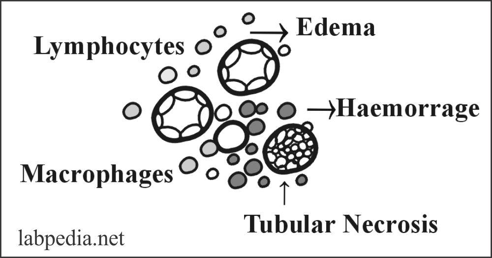 Fig 118: Acute Cellular Rejection