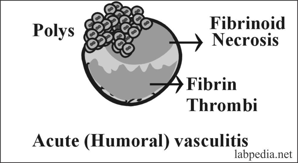 Fig 119: Acute Humoral Vasculitis