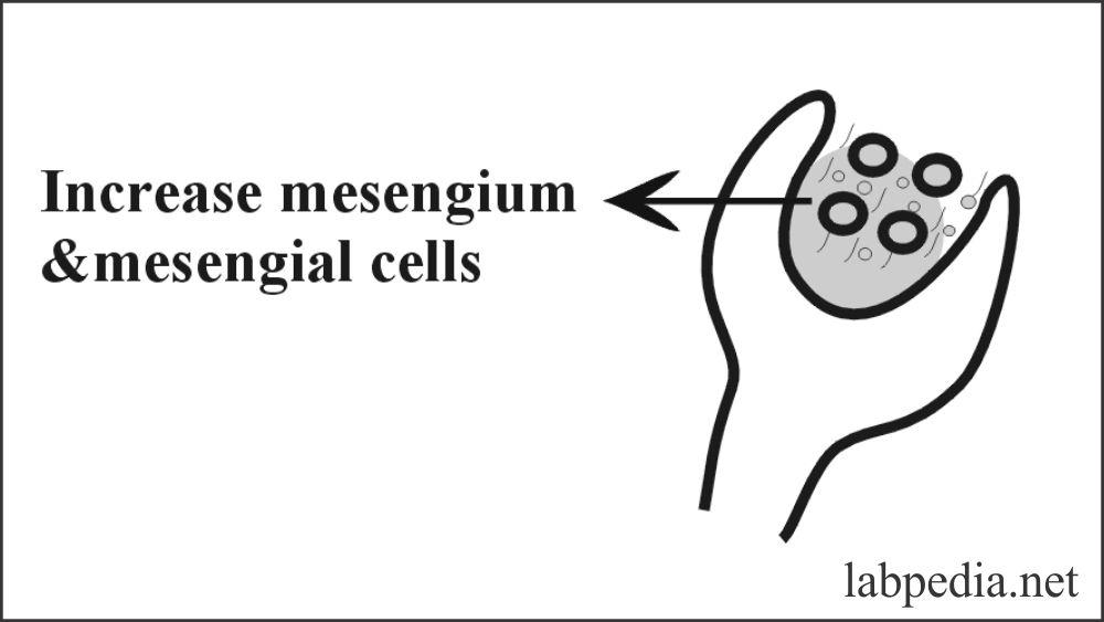 Fig 133: Mesengial Lupus G.Nephritis in SLE