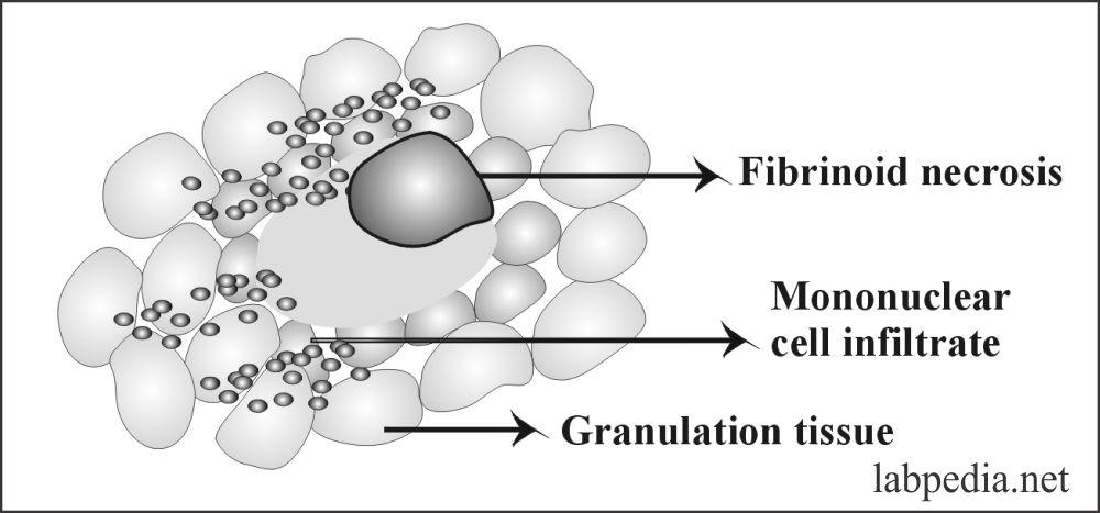 Fig 142: Rheumatoid Nodule