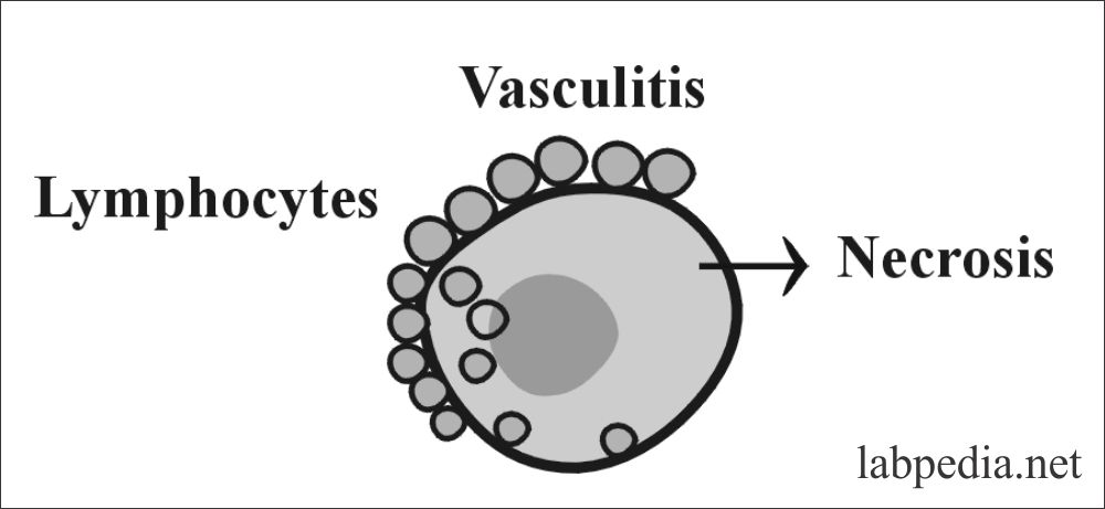 Fig 144: Vasculitis in Polyarteritis Nodosa