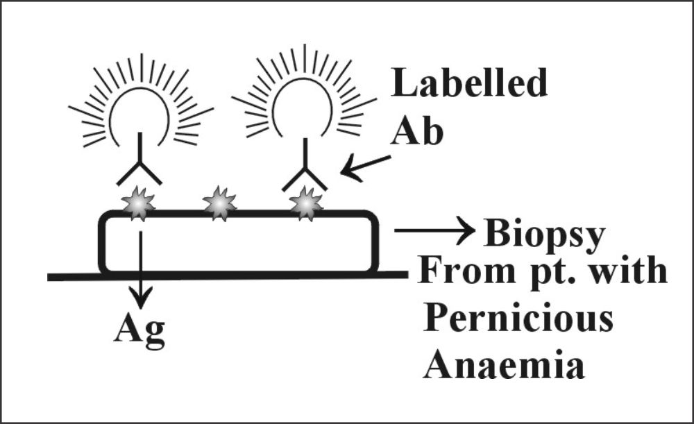 Fig 169: Direct Fluorescent Antibody