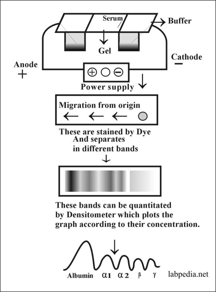 Fig 173: Electrophoresis