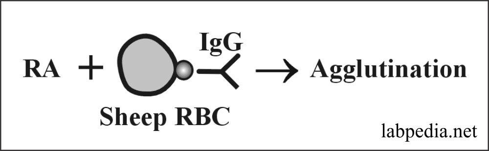 Fig 174: Rheumatoid factor